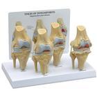 Osteo Knee Model Set - 4 Stage