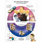 Acceleration Injury to the Cervical Spine Chart