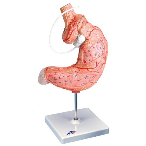 Human Stomach Model with Gastric Band, 2 part - 3B Smart Anatomy