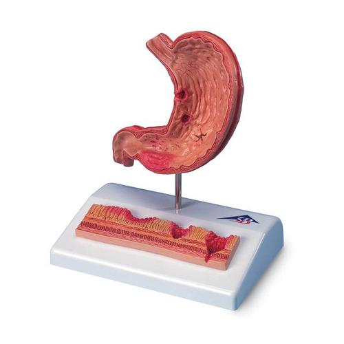 Human Stomach Section Model with Ulcers - 3B Smart Anatomy