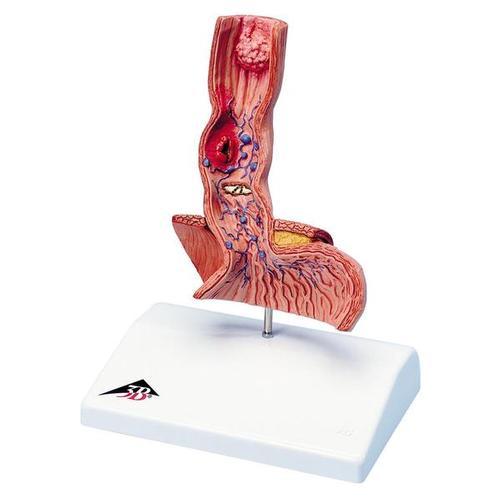 Life-Size Human Esophagus Diseases Model - 3B Smart Anatomy
