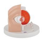 Pathological Human Eye Model - 3B Smart Anatomy