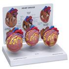 Heart Mini Model Set of 3
