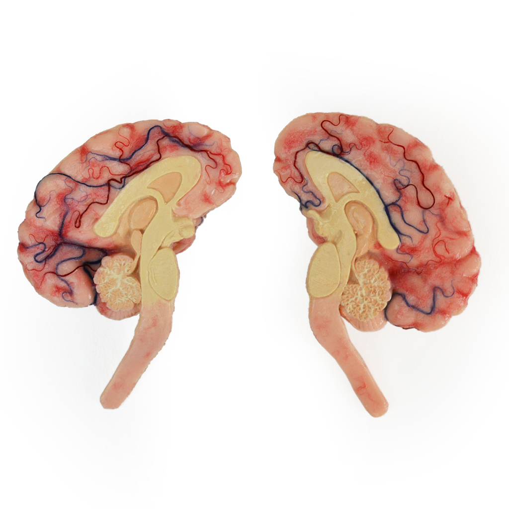 Bisected Brain